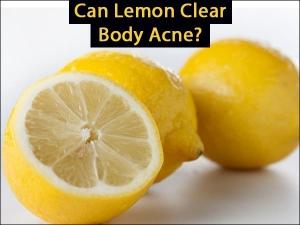 Can Lemon Clear Body Acne