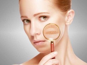 Skin Problems That All Women Face In Mid Twenties
