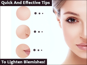 Quick And Effective Tips To Lighten Blemishes