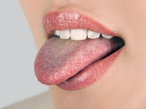Tongue Tests Reveal These Diseases