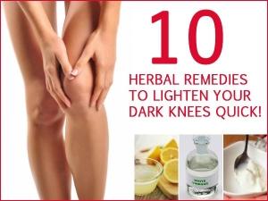 Ten Herbal Remedies To Lighten Your Dark Knees Quick