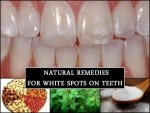 Quick Remedies For White Spots On Teeth