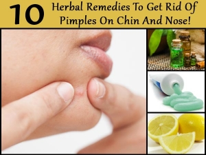 Ten Herbal Remedies To Get Rid Of Pimples On Chin And Nose