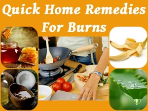 Home Remedies For Kitchen Burns Aloevera Coconut Oil Olive Honey