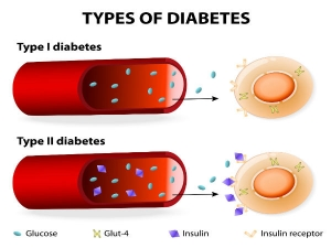 How Does Type One Daibetes Differ From Type Two Diabetes