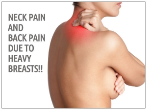 Do Heavy Breasts Cause Back Pain