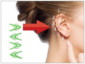 Reflex Points On Ears