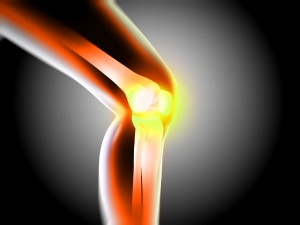 Obese Weight Loss May Prevent Knee Joint Degeneration