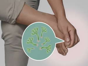Home Remedies To Treat Fungal Infections During Monsoon