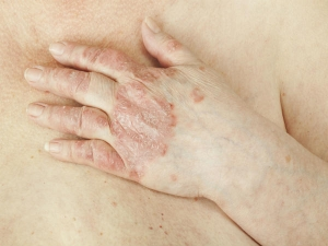 Best Natural Treatments For Psoriatic Arthritis