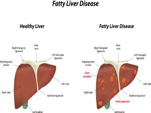 Home Remedies For Fatty Liver Disease And Foods To Avoid It