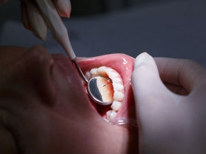New 3 D Based Blood Vessels May Revolutionise Root Canal