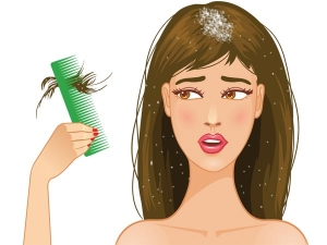 Fifteen Plus Single Ingredient Home Remedies For Dandruff And Dry Scalp