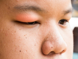 Causes Of Swollen Eyelids That You Know About