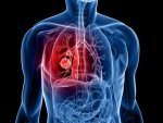 Vitamin B Intake May Up Lung Cancer Risk In Men Study