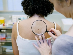 New Treatment That Helps Prevent Spread Of Skin Cancer Causes Skin Cancer
