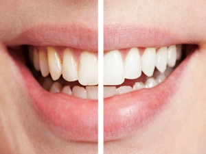 Mistakes That We Make While Taking Care Of Teeth