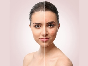 Heres How You Can Use Rice Water For Acne Reduction