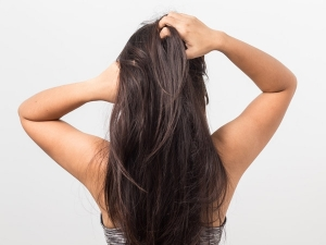 Use These Essential Oils To Treat Flaky Scalp