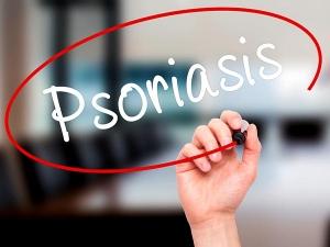 Factors That Trigger Psoriasis