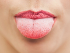 Home Remedies To Get Rid Of Tongue Blisters