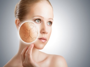 Do You Have A Dry Skin Here Are Some Remedies To Follow