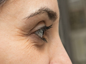 How Remove Wrinkles On The Outer Corner The Eyes
