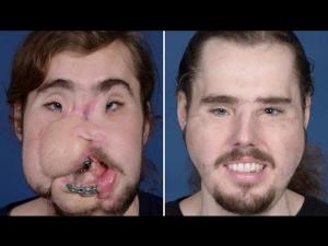 Man Got A Face Transplant After He Shot Himself