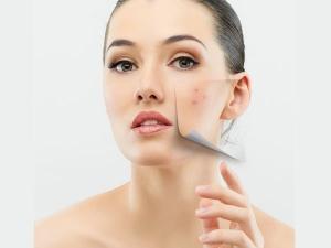 How Use Potatoes Acne Blackheads Whiteheads Scars