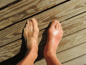 Gout Causes Symptoms Treatment Remedies