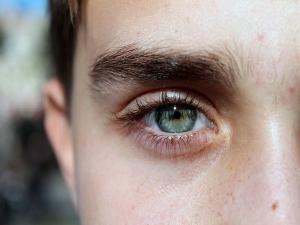 Madarosis Causes Symptoms Treatment