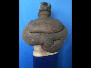 A Cancerous Tumour Engulfed A Man S Back And It Clung To His Lungs Spine And Blood Vessels