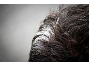 Poliosis Symptoms Types Causes Treatment