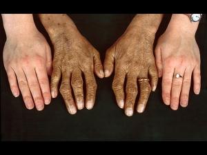 Hemochromatosis Types Symptoms Causes Treatment