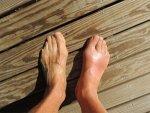 Bunions Causes Symptoms Treatment