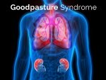 Goodpasture Syndrome Causes Symptoms Treatment
