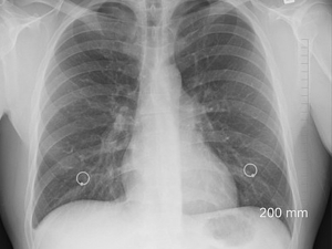 Bronchopneumonia Causes Symptoms Treatment Prevention