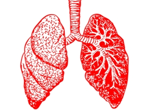 Lung Cancer Signs Causes Symptoms Treatment