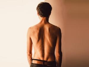 Scoliosis Symptoms Causes Diagnosis Treatment