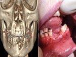 Vape Pen Explodes Shattering Teens Teeth Jaw