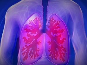 Bronchiectasis Causes Symptoms Treatment