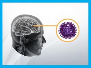 Encephalitis Causes Symptoms Treatment Prevention
