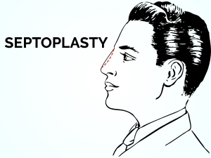 What Is Septoplasty Purpose Procedure And Risks
