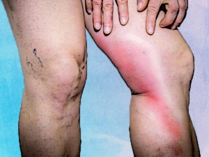 Phlebitis Types Causes Symptoms Treatment Prevention