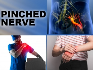 Pinched Nerve Causes Symptoms Treatment And Exercises