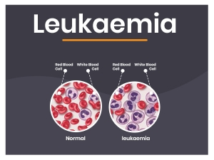 Leukaemia Causes Types Symptoms Complications Treatment Prevention
