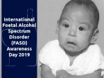 International Foetal Alcohol Spectrum Disorder Fasd Awareness