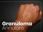 Granuloma Annulare Types Causes Symptoms Diagnosis Treatment