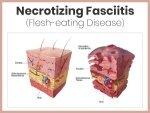 Necrotizing Fasciitis Nf Causes Symptoms Risk Factors Treatment Prevention