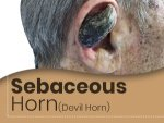 Sebaceous Horn Devil Horn Causes Symptoms Treatment Prevention